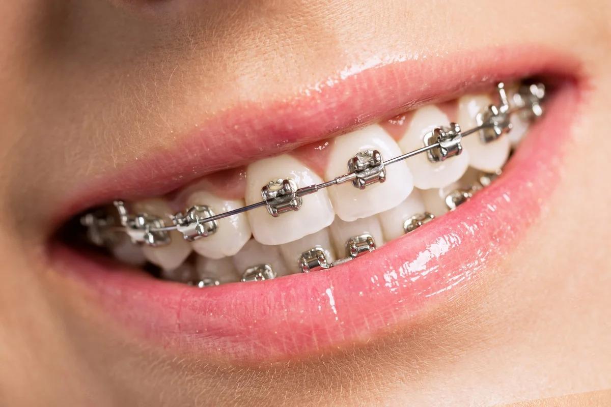 установка брекетов на зубы