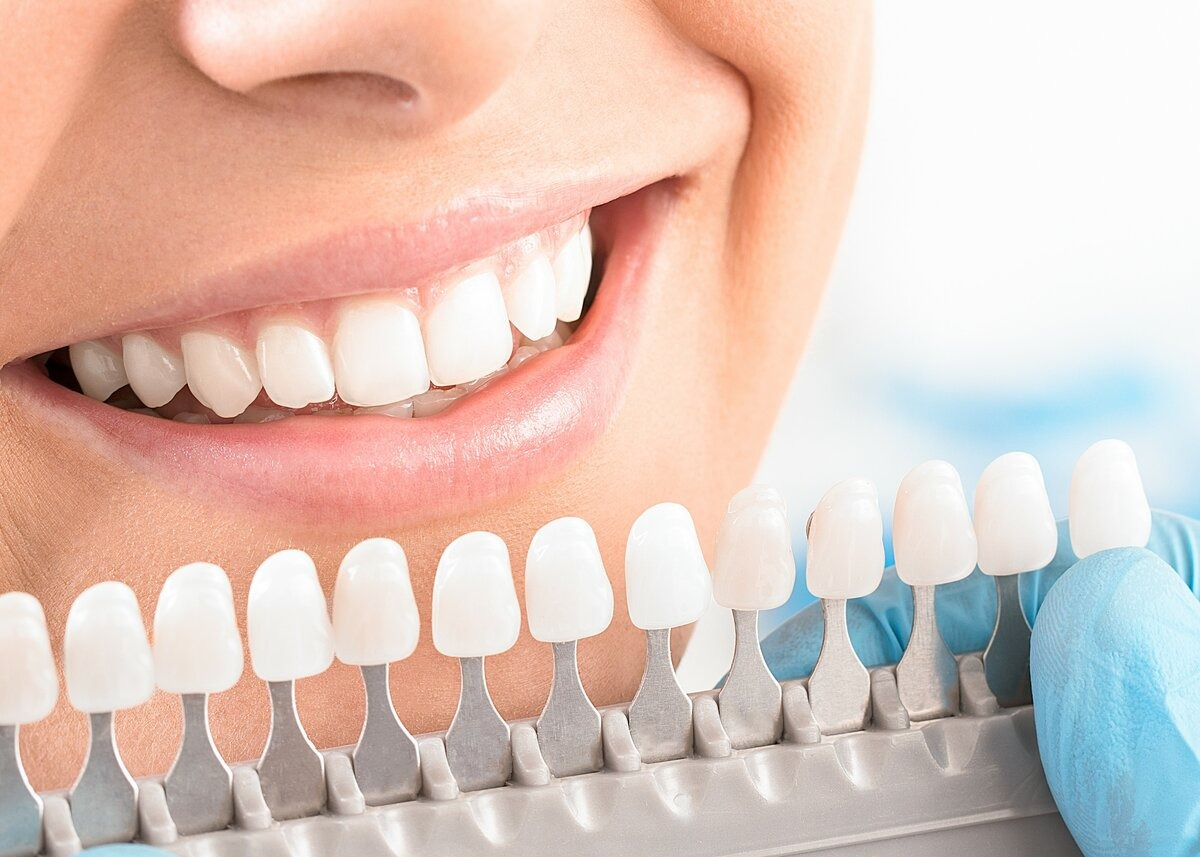 отбеливание зубов сочи